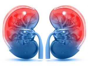 درمان عفونت کلیه / درمان طبیعی خانگی برای عفونت کلیه