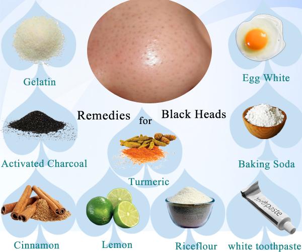 درمان خانگی جوش سر سیاه .