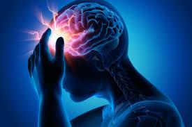 علایم سکته مغزی