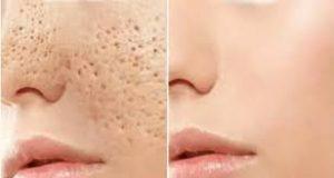 درمان خانگی منافذ باز پوست .