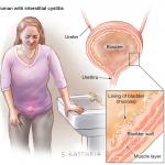 سندرم مثانه دردناک چیست ؟ با درمان و علایم این بیماری آشنا شوید.
