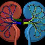 نارسایی کلیه / علت ، علائم  و درمان نارسایی کلیه در انسان