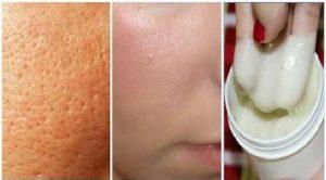 درمان خانگی منافذ باز پوست ، بهترین درمان برای منافذ پوست