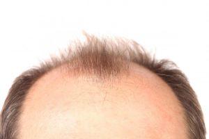 درمان کچلی سر با ساده ترین روش ها و راه های پیشگیری از ریزش زیاد مو