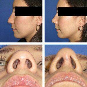 رینوپلاستی چیست ؟ | انواع روش های جراحی بینی چیست؟