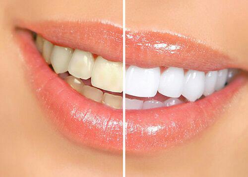 لمینت دندان .
