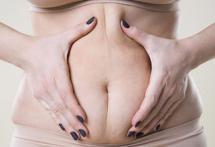سلولیت در دوران بارداری .