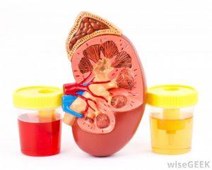 خون در ادرار / دلایل و درمان وجود خون در ادرار چیست ؟