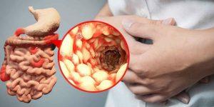 بیماری کرون چیست ؟ علت ، علایم و درمان بیماری کرون