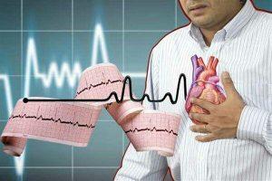 درمان سکته قلبی .