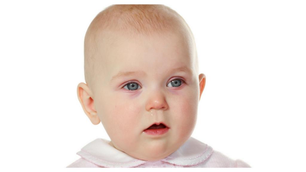 سرماخوردگی در نوزادان .