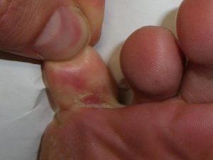 قارچ انگشتان پا / چگونه از ابتلا به عفونت قارچی پا جلوگیری کنیم