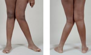پاهای پرانتزی | تمرینانی برای افرادی که پاهای پرانتزی دارند.