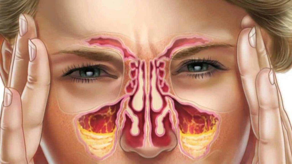 درمان سینوزیت .