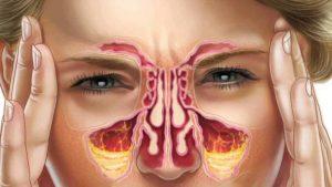 درمان سینوزیت / پیاز و هویج برای درمان عفونت های سینوسی