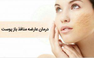 درمان منافذ باز پوست | چگونه منافذ باز پوستمان را از بین ببریم؟