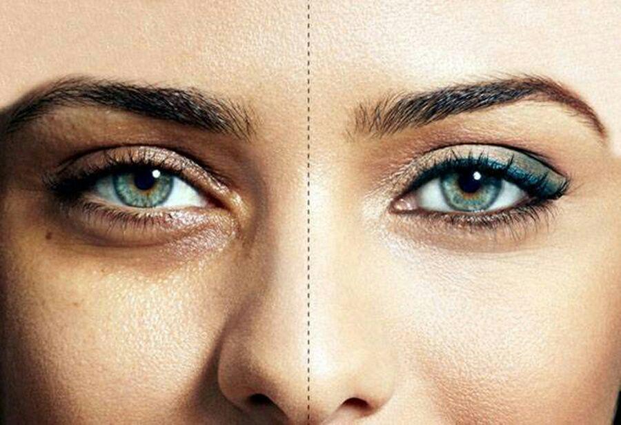 رفع سیاهی دور چشم