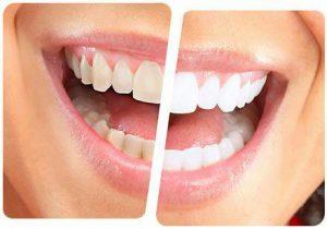 جرم دندان | چگونه جرم دندان هایمان را در منزل کاهش دهیم؟