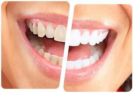 جرم دندان  .