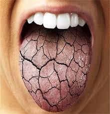 خشک شدن دهان / دلایل خشکی دهان چیست و چطور درمان می شود؟