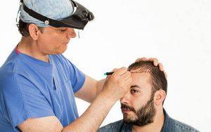 کاشتن مو | چه افرادی برای کاشت مو مناسب نیستند؟عوارض کاشت مو چیست؟