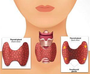 غده تیروئید / مواد غذایی مفید و مضر برای تیروئید را بشناسید.