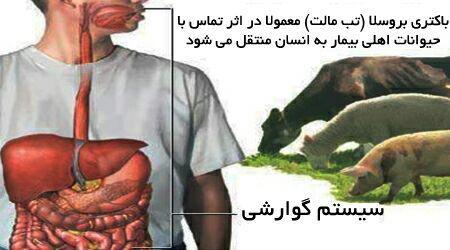 بیماری بروسلوز.