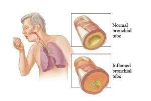 بیماری برونشیت |درمان های خانگی برای بهبود بیماری برونشیت چیست؟