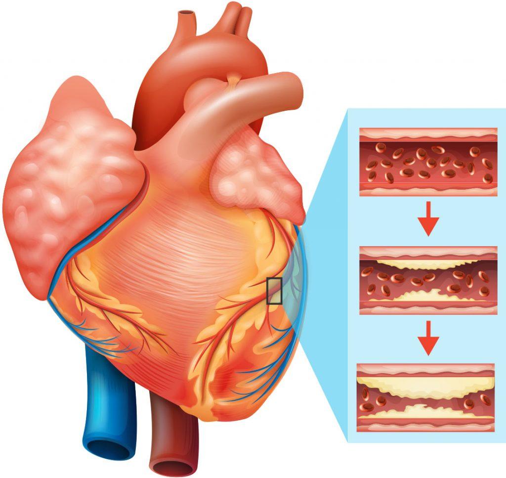 بیماری قلبی عروقی .