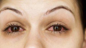 رفع سرخی چشم / راه ساده اما موثر برای درمان سرخ شدن چشم ها