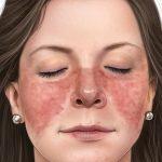 درمان خانگی لوپوس / درمان های شگفت انگیز مفید برای لوپوس