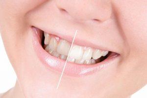 سلامت دهان و دندان |کدام مواد غذایی باعث سلامت دهان و دندان میشوند؟