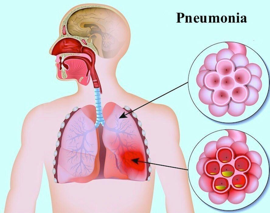 بیماری پنومونی چیست