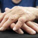 بیماری آرتریت روماتوئید | چگونه درد بیماری آرتریت روماتوئید را کاهش دهیم؟