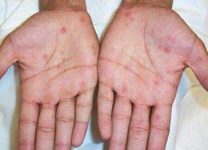 بیماری سیفلیس | علل و علائم و چگونگی درمان بیماری سیفلیس