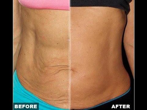 سفت کردن پوست بعد از لاغری