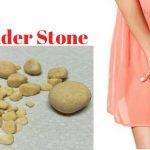 سنگ مثانه / علل ، علایم و درمان و پیشگیری از سنگ های مثانه