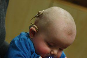کاشت حلزون شنوایی در کودکان چگونه است ؟ چطور کار می کند؟
