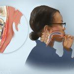 دیسفاژی یا اختلال بلعیدن چیست ؟ علل ، علایم و درمان دیسفاژی