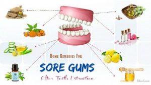 درمان درد دندان مصنوعی / درمان خانگی برای درد دندان مصنوعی