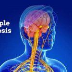 MS / علائم اولیه بیماری MS یا مولتیپل اسکلروزیس چیست؟