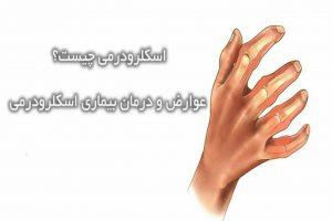 علت و علائم بیماری اسکلرودرمی چیست؟ همراه با درمان آن