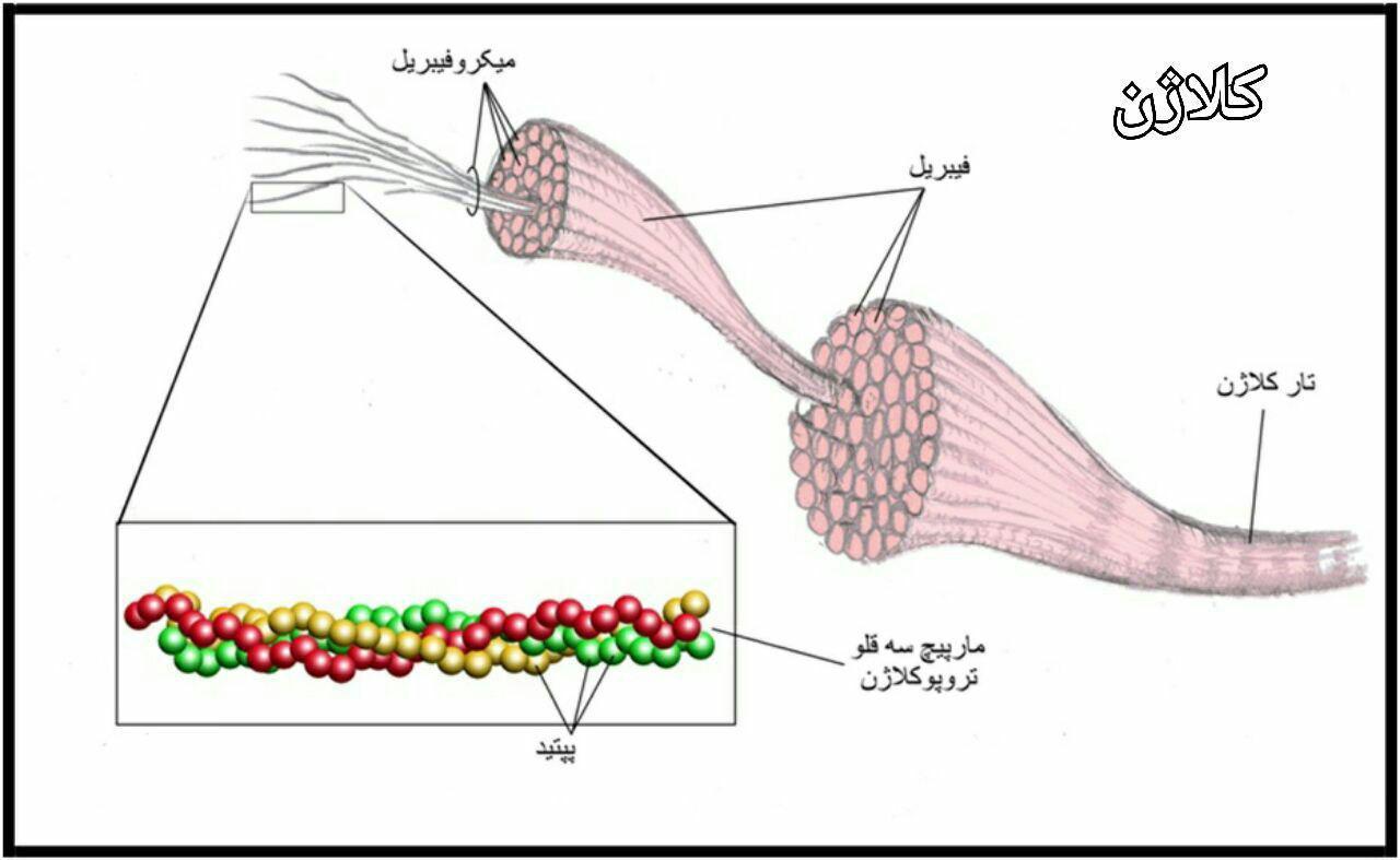بیماری اسکوربوت