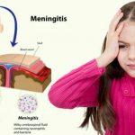 علل و علائم بیماری مننژیت چیست و چگونه این بیماری را درمان کنیم؟