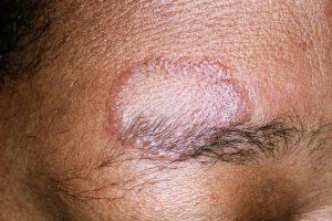 بیماری سارکوئیدوز چیست؟ علل , علائم و درمان بیماری سارکوئیدوز