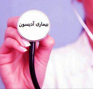 علل و علائم بیماری آدیسون چیست و چگونه بیماری آدیسون را درمان کنیم؟