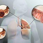 علل و علائم بیماری برونشکتازی چیست و چگونه آن را درمان کنیم؟