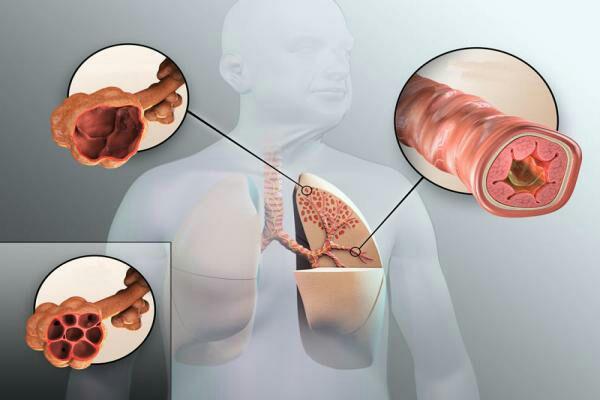 بیماری برونشکتازی