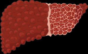 سیروز کبدی چیست ؟ درمان های طبیعی برای درمان سیروز کبدی