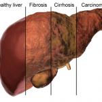 بیماری کبد چرب – علائمی که نباید نادیده بگیرد!